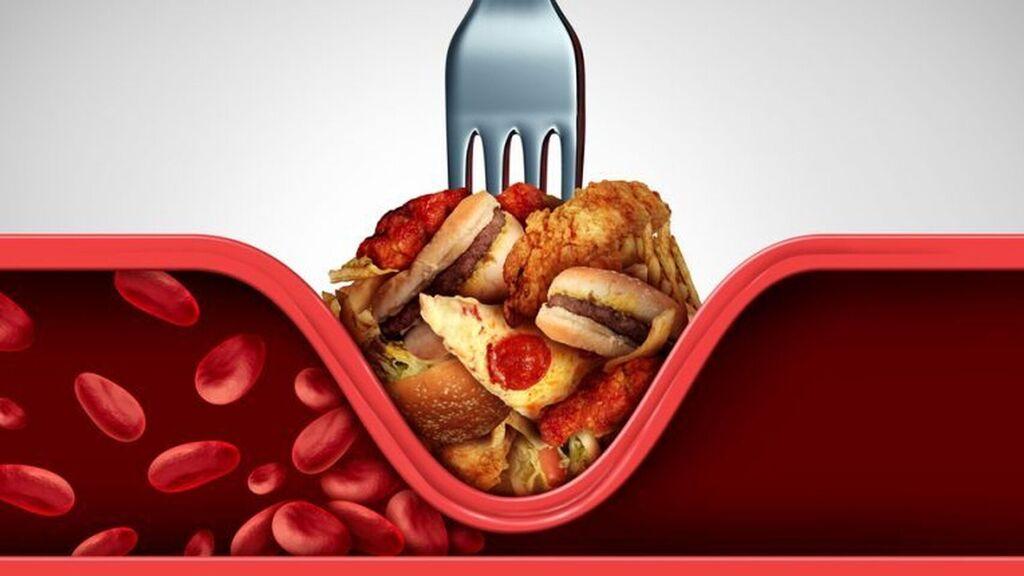 Revisión sobre los valores del colesterol